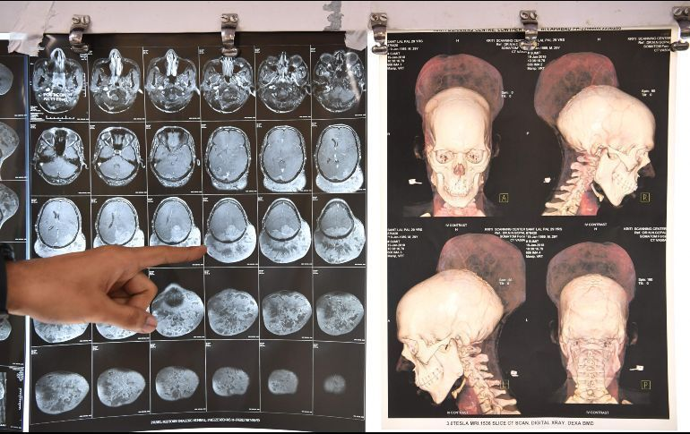Le extirpan tumor cerebral más grande del mundo y queda así — India