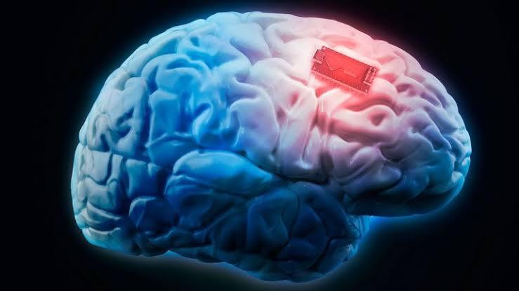 Elon Musk busca tratar autismo y la esquizofrenia con chip